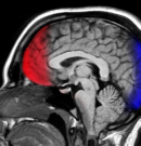 The 'Real You' Is A Myth: Scientists Say We Invent False Memories To Be Who We Want